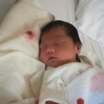 新生児黄疸はいつまで続く?原因や長引く理由や症状4つのポイント!