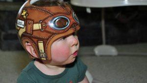 赤ちゃんの頭の形を治すヘルメットって何?7つのメリットとデメリット
